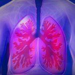 【肺気胸の体験談】胸腔ドレナージ処置を受けました!